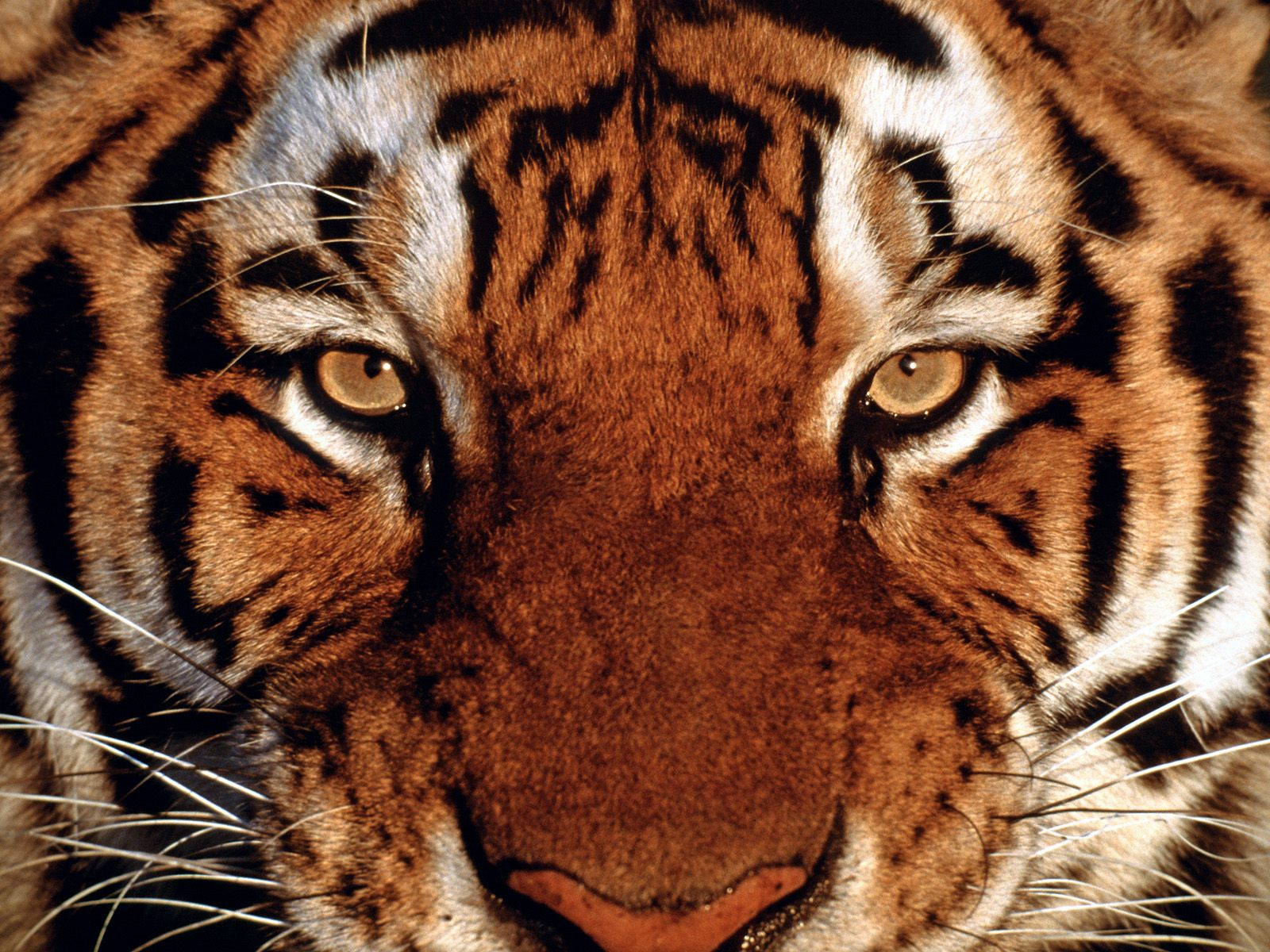 SGEM#18: Eye of the Tiger (Traumatic Hyphema)