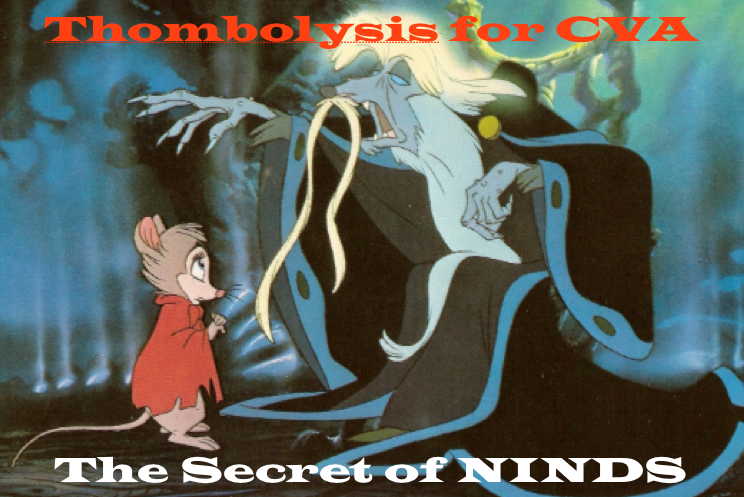SGEM#70: The Secret of NINDS (Thrombolysis for Acute Stroke)
