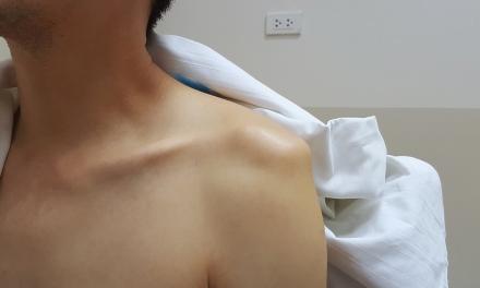 SGEM#288: Crazy Game of POCUS to Diagnose Shoulder Dislocations
