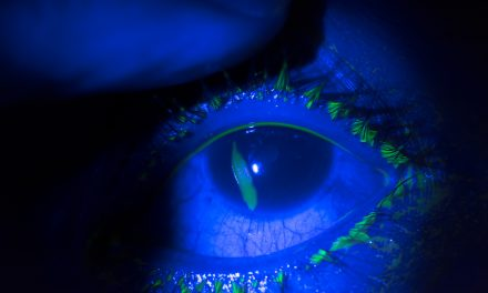 SGEM#315: Comfortably Numb with Topical Tetracaine for Corneal Abrasions